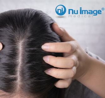 Confirming the 4 Areas of Women's Balding