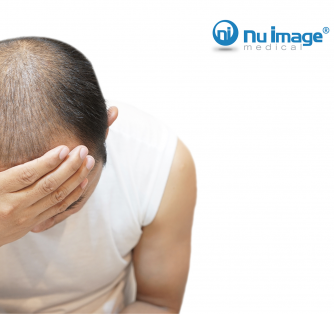 Thoughts On the Confusing Stigma of Men's Hair Loss