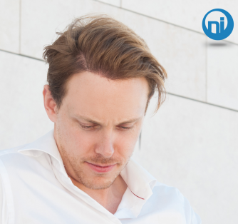 Understanding Baldness and DHT