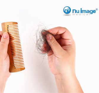 Hair Loss: Common Causes of Male and Female Hair Loss