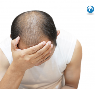 Is Your Hair Style Causing Traction Alopecia?