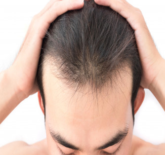What to Do If You Suffer From Hair Loss Due to Stress