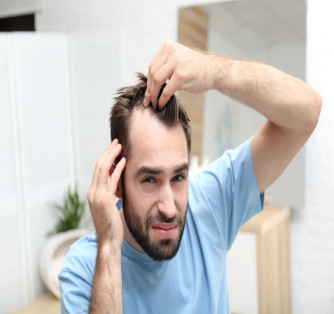 What Is Male Pattern Baldness and How Can You Treat It?