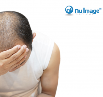 Taking the Mystery Out of Balding and Thinning Hair
