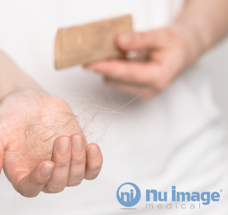 What to Know About Hair Loss and Restoration
