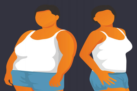 The HCG Diet: An Alternative to Gastric Bypass Surgery