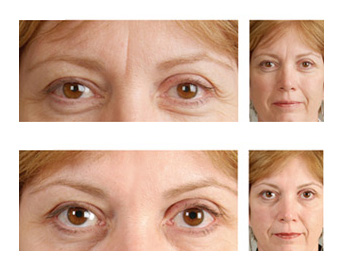 botox injection beforeafter Botox Tampa